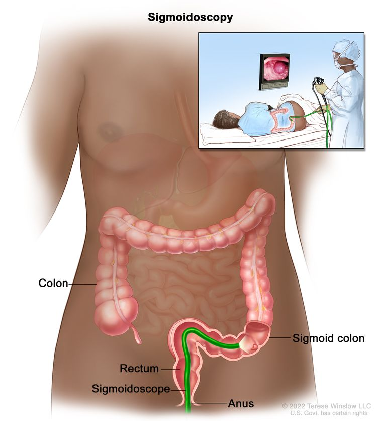 Sigmoidoscopy; shows sigmoidoscope inserted through the anus and rectum and into the sigmoid colon.  Inset shows patient on table having a sigmoidoscopy.