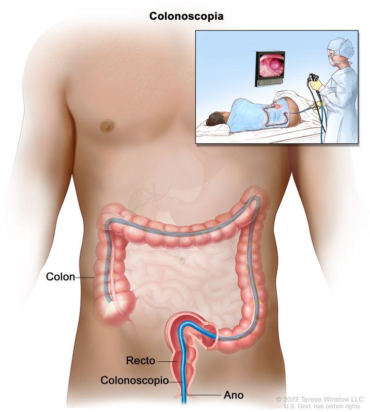 Colonoscopia. Se inserta un colonoscopio a través del ano y el recto en el colon. En el recuadro, se muestra a un paciente en una camilla al que se le realiza una colonoscopia.