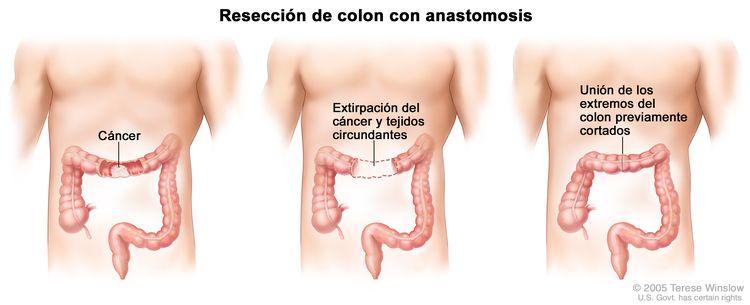La ilustración a tres paneles muestra una cirugía de cáncer de colon con anastomosis; el primer panel muestra el área del colon con cáncer, el panel del medio muestra la extirpación del cáncer y el tejido circundante, el último panel muestra la unión de los extremos del colon.