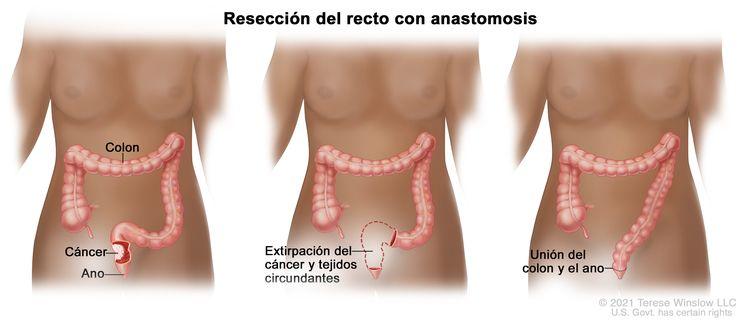La ilustración a tres paneles muestra una cirugía de cáncer de recto con anastomosis; el primer panel muestra el área del recto con cáncer, el panel medio muestra la extracción del cáncer y el tejido circundante, el último panel muestra la unión del colon y el ano.