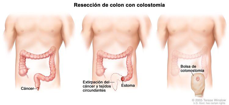 La ilustración a tres paneles muestra una cirugía de cáncer de ano con colostomía; el primer panel muestra el área del ano con cáncer, el panel del medio muestra la extirpación del cáncer y el tejido circundante y la creación de un estoma, el último panel muestra la colocación de la bolsa de colostomía junto al estoma.
