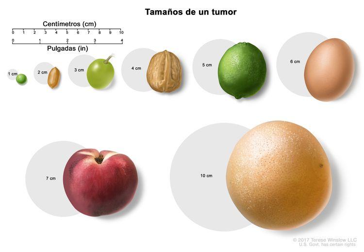 Tamaños de un tumor. En la imagen se observan diferentes tamaños de un tumor en centímetros (cm) que se comparan con el tamaño de una arveja (1 cm), un maní (2 cm), una uva (3 cm), una nuez (4 cm), una lima (5 cm), un huevo (6 cm), un durazno (7 cm) y un pomelo (10 cm). También se muestra una regla de 10 cm y una regla de 4 in.