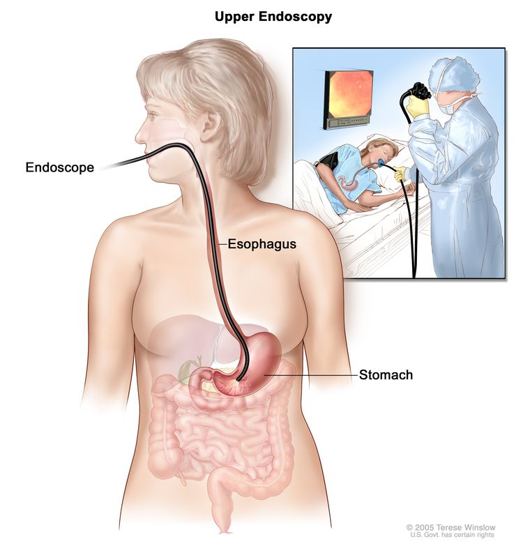 Upper endoscopy; shows endoscope inserted through the mouth and esophagus and into the stomach. Inset shows patient on table having an upper endoscopy.