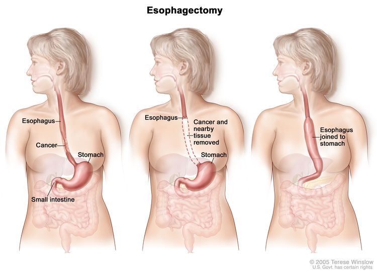 Three-panel drawing showing esophageal cancer surgery; first panel shows area of esophagus with cancer, middle panel shows cancer and nearby tissue removed, last panel shows the stomach pulled up and joined to the remaining esophagus.