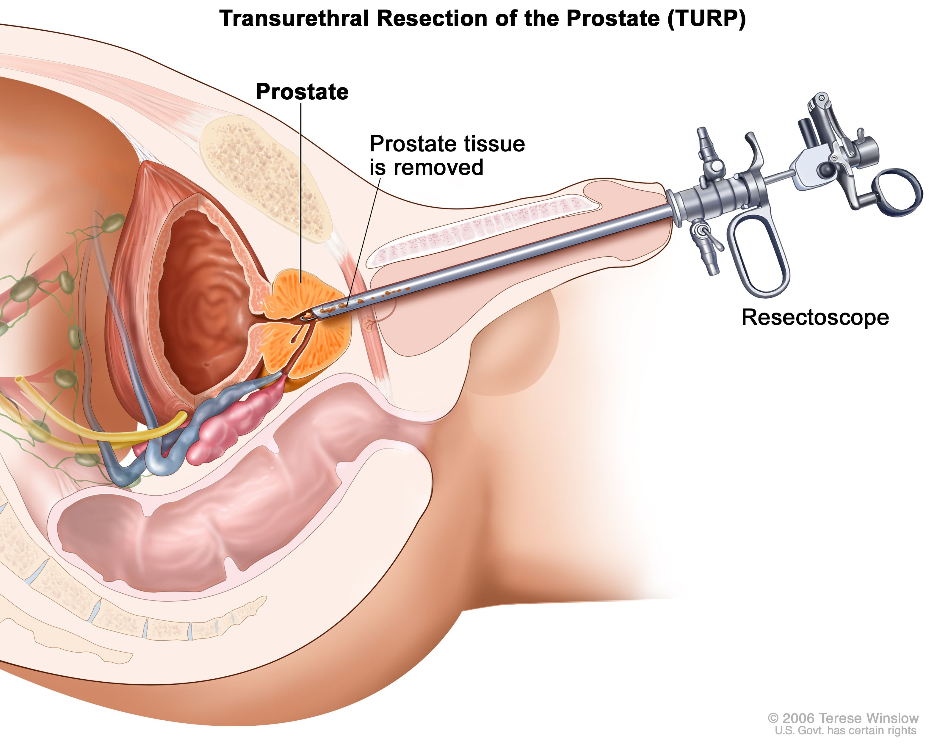 Prostcare Treatment of Enlarged prostate problems, PSA, Prostatitis, Brits