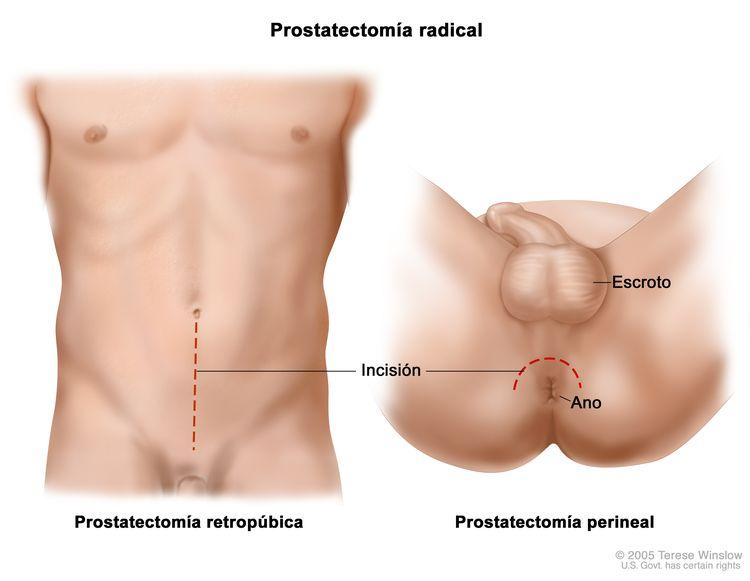 El dibujo a dos paneles muestra dos formas de hacer una prostatectomía radical; en el primer panel, la línea punteada muestra el lugar donde se hace la incisión a través de la pared del abdomen para realizar una prostatectomía retropúbica; en el segundo panel, la línea punteada muestra el lugar donde se hace la incisión entre el escroto y el ano para realizar una prostatectomía perineal.