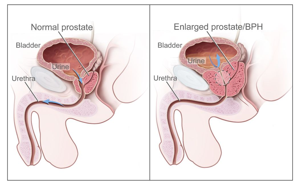 Prostate Cancer Signs Diagnosis Treatment Understanding
