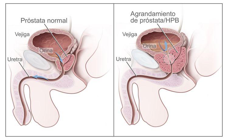 Un dibujo en dos paneles muestra la anatomía reproductora y urinaria normal así como hiperplasia prostática benigna (HPB).  El panel de la izquierda muestra la próstata normal y el flujo de orina de la vejiga a la uretra.  El panel de la derecha muestra un agrandamiento de próstata que ejerce presión sobre la vejiga y la uretra, con la obstrucción del flujo de la orina.