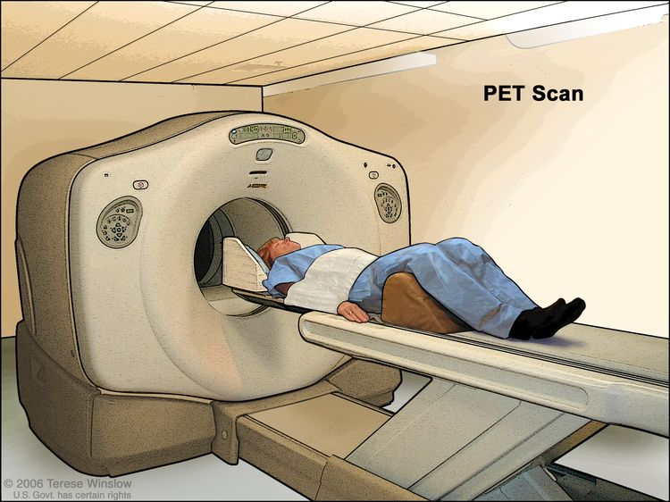 PET (positron emission tomography) scan; drawing shows patient lying on table that slides through the PET machine.
