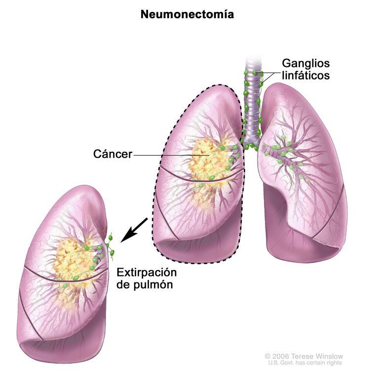 Neumonectomía. En la imagen se observan la tráquea, los ganglios linfáticos y los pulmones (con cáncer en un pulmón). Se muestra el pulmón con cáncer que se extirpó.