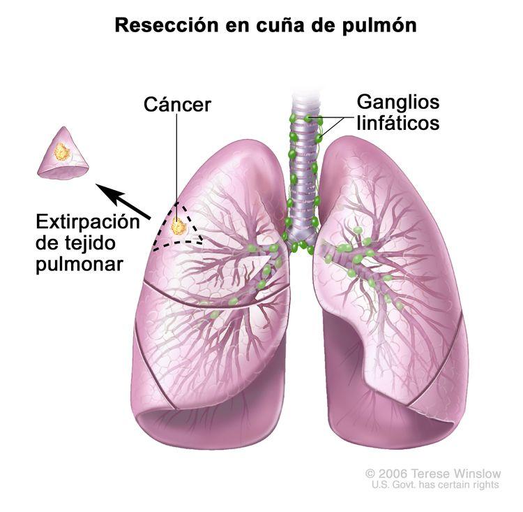 Resección en cuña de pulmón. En la imagen se observan la tráquea y los pulmones con cáncer en uno de los lóbulos del pulmón. Se muestra el tejido extirpado del pulmón con cáncer y una pequeña cantidad del tejido sano que lo rodea; también se muestra el lóbulo del pulmón del que se extrajo el tejido.