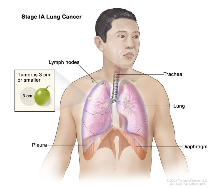 Stage IA lung cancer; drawing shows a tumor (3 cm or less) in the right lung. Also shown are the lymph nodes, trachea, pleura, and diaphragm.