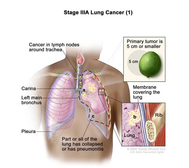 Stage IIIA lung cancer (1); drawing shows a primary tumor (5 cm or smaller) in the left lung (top inset) and cancer in lymph nodes around the trachea. Also shown is cancer that has spread to (a) the left main bronchus and (b) the membrane covering the lung (bottom inset). Also shown is (c) part or all of the lung has collapsed or has pneumonitis (inflammation). The carina, pleura, and a rib (bottom inset) are also shown.