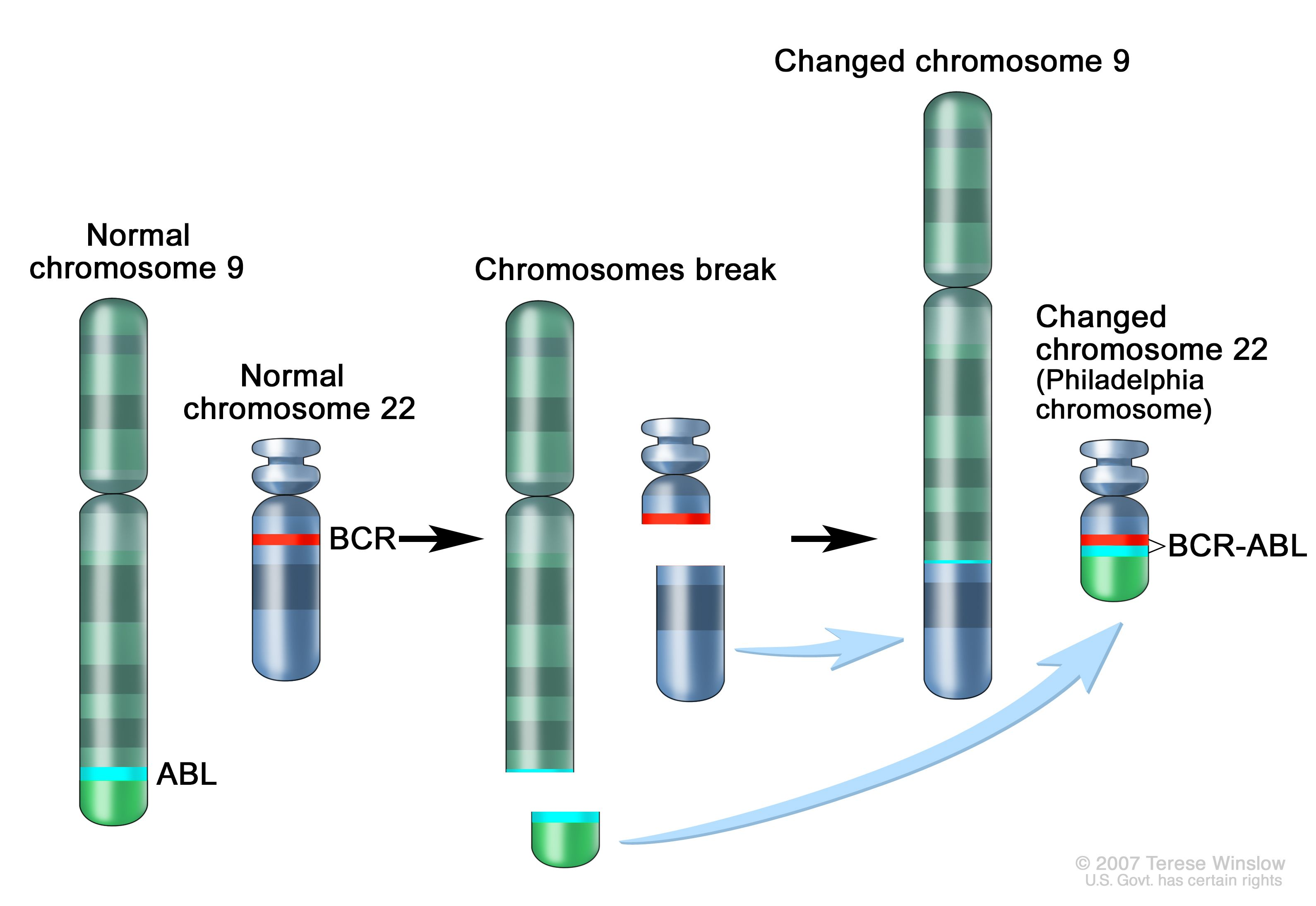 Филаделфия хромозома