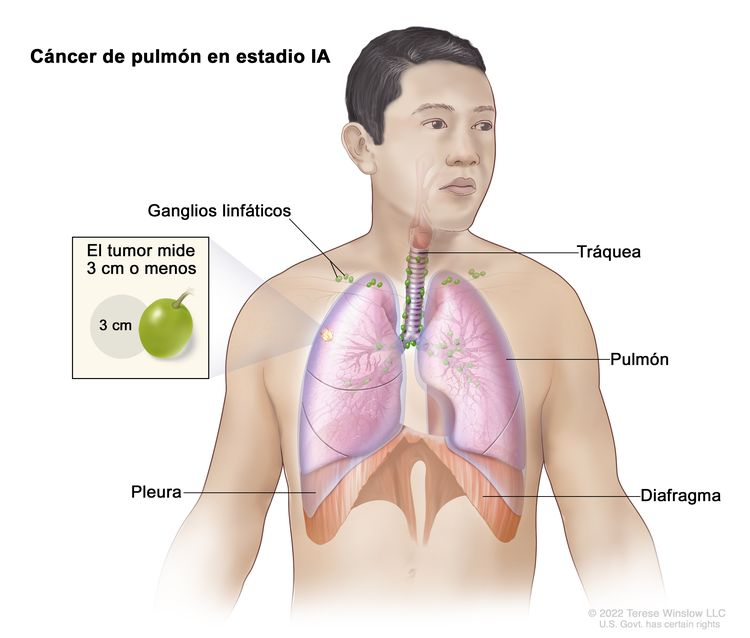 Cáncer de pulmón en estadio IA. En la imagen se observa un tumor que mide 3 cm o menos en el pulmón derecho. También se observan los ganglios linfáticos, la tráquea, la pleura y el diafragma.