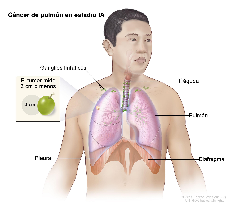 Tratamiento Del Cáncer De Pulmón De Células No Pequeñas Pdq Versión Para Profesionales De Salud Instituto Nacional Del Cáncer
