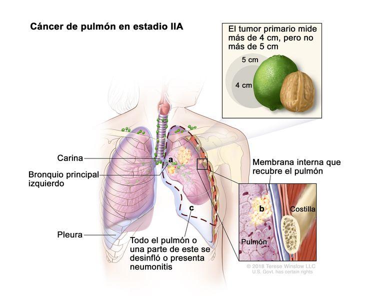 Cáncer de pulmón en estadio IIA. En la imagen se observa un tumor primario en el pulmón izquierdo que mide más de 4 cm, pero no más de 5 cm. Además se observan las siguientes situaciones: a) el cáncer se diseminó al bronquio principal izquierdo; b) el cáncer se diseminó a la membrana interna que recubre el pulmón (recuadro inferior); c) todo el pulmón o una parte de este se desinfló o presenta neumonitis (inflamación del pulmón). También se observan la carina y la pleura y, en el recuadro inferior, una costilla.