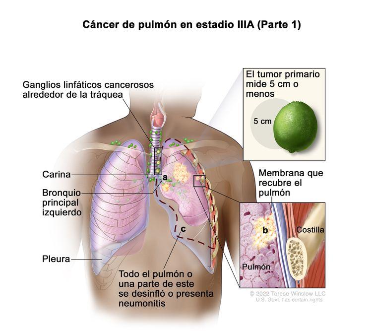 Cáncer de pulmón en estadio IIIA (Parte 1). En la imagen se observan un tumor primario que mide 5 cm o menos (recuadro superior) en el pulmón izquierdo y ganglios linfáticos cancerosos alrededor de la tráquea. También se observa lo siguiente: a) el cáncer se diseminó al bronquio principal izquierdo; b) el cáncer se diseminó a la membrana que recubre el pulmón (recuadro inferior); c) todo el pulmón o una parte de este se desinfló o presenta neumonitis (inflamación del pulmón). También se muestran la carina, la pleura y en el recuadro inferior, una costilla.