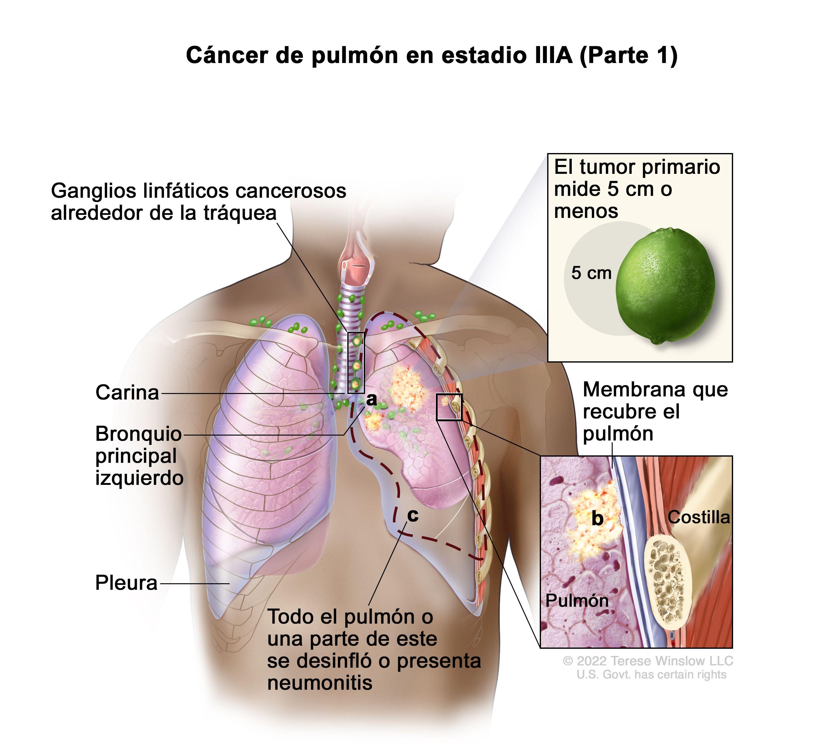que es el cancer de pulmon cancer de piele in zona genitala