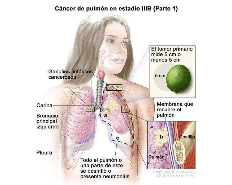 Cáncer de pulmón en estadio IIIB (Parte 1). En la imagen se observan un tumor primario que mide 5 cm o menos en el pulmón izquierdo, y ganglios linfáticos cancerosos encima de la clavícula del mismo lado del tórax que el tumor primario y en el lado contrario al tumor primario. También se observan las siguientes situaciones: a) el cáncer se diseminó al bronquio principal; b) el cáncer se diseminó a la membrana que recubre el pulmón; c) todo el pulmón o una parte de este se desinfló o presenta neumonitis (inflamación del pulmón). Además, se muestran la carina, la pleura y, en un recuadro, una costilla.