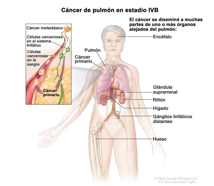 Cáncer de pulmón en estadio IVB. En la imagen se observan cáncer primario en el pulmón izquierdo y otras partes del cuerpo donde es posible que se disemine el cáncer de pulmón: el encéfalo, la glándula suprarrenal, el riñón, el hígado, los ganglios linfáticos distantes y el hueso. En un recuadro, se muestran células cancerosas que se diseminan desde el pulmón, a través de la sangre y el sistema linfático, hasta otra parte del cuerpo donde se formó el cáncer metastásico.