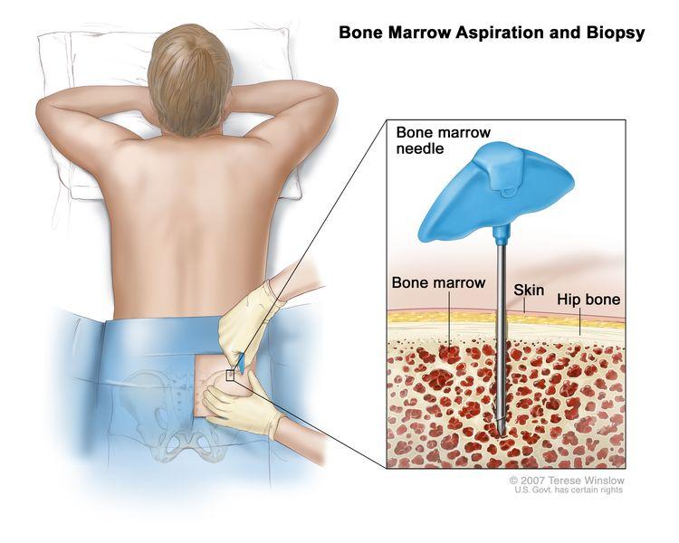 Aspiracija kostnega mozga in biopsija; risba prikazuje pacienta, ki leži na mizici z licem navzdol in v kolčno kost vstavljeno iglo iz kostnega mozga. Inset kaže, da se igla kostnega mozga vstavlja skozi kožo v kostni mozeg kolčne kosti.