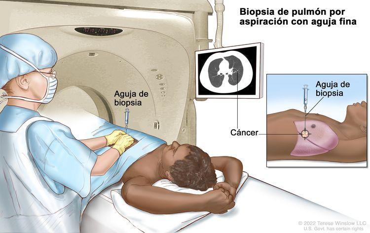 Biopsia de pulmón; el dibujo muestra a un paciente tendido sobre una camilla que se desliza a través de una máquina de tomografía computarizada (TC), y una imagen de una radiografía de un corte transversal del pulmón en un monitor arriba del paciente. El dibujo también muestra a un médico usando la imagen radiográfica para ayudarlo a colocar la aguja de biopsia a través de la pared torácica, hasta el área del tejido anormal del pulmón. El dibujo del recuadro muestra una vista lateral de la cavidad torácica y los pulmones, con la aguja de biopsia insertada en el área de tejido anormal.