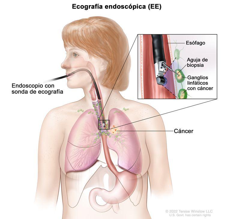 Biopsia por aspiración con aguja fina guiada por ecografía endoscópica; el dibujo muestra un endoscopio con una sonda de ecografía y una aguja de biopsia insertada a través de la boca hasta el esófago. El dibujo también muestra los ganglios linfáticos cerca del esófago y el cáncer en un pulmón. El recuadro muestra la sonda ecográfica localizando los ganglios linfáticos con cáncer y la aguja de biopsia extrayendo tejido de uno de los ganglios linfáticos cerca del esófago.
