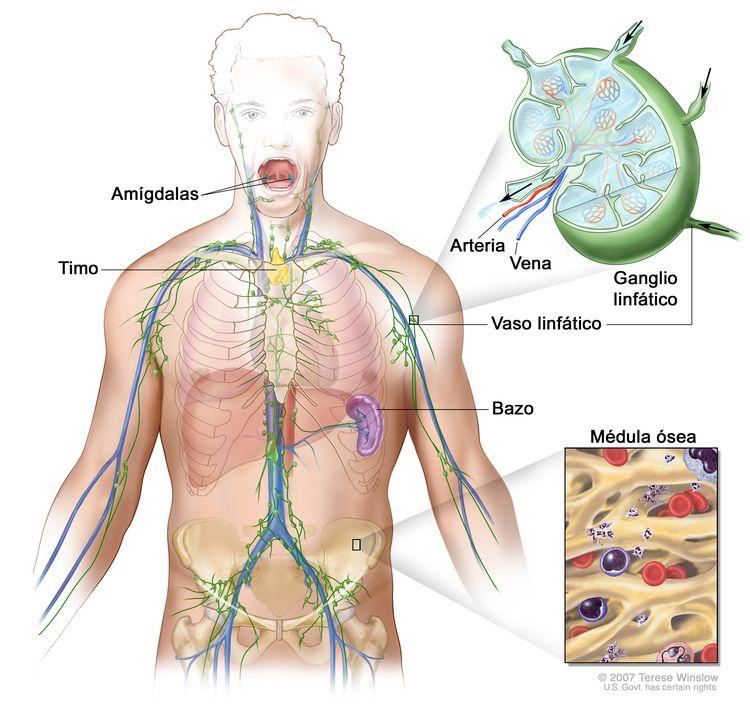 Sistema linfático. En la imagen se observan los vasos linfáticos y algunos órganos linfáticos (ganglios linfáticos, amígdalas, timo, bazo y médula ósea). En una ampliación, se muestra el interior de un ganglio linfático, los vasos linfáticos que están unidos al ganglio linfático y unas flechas que indican cómo la linfa (líquido claro) entra y sale del ganglio. En otra ampliación, se muestra la médula ósea con células sanguíneas.
