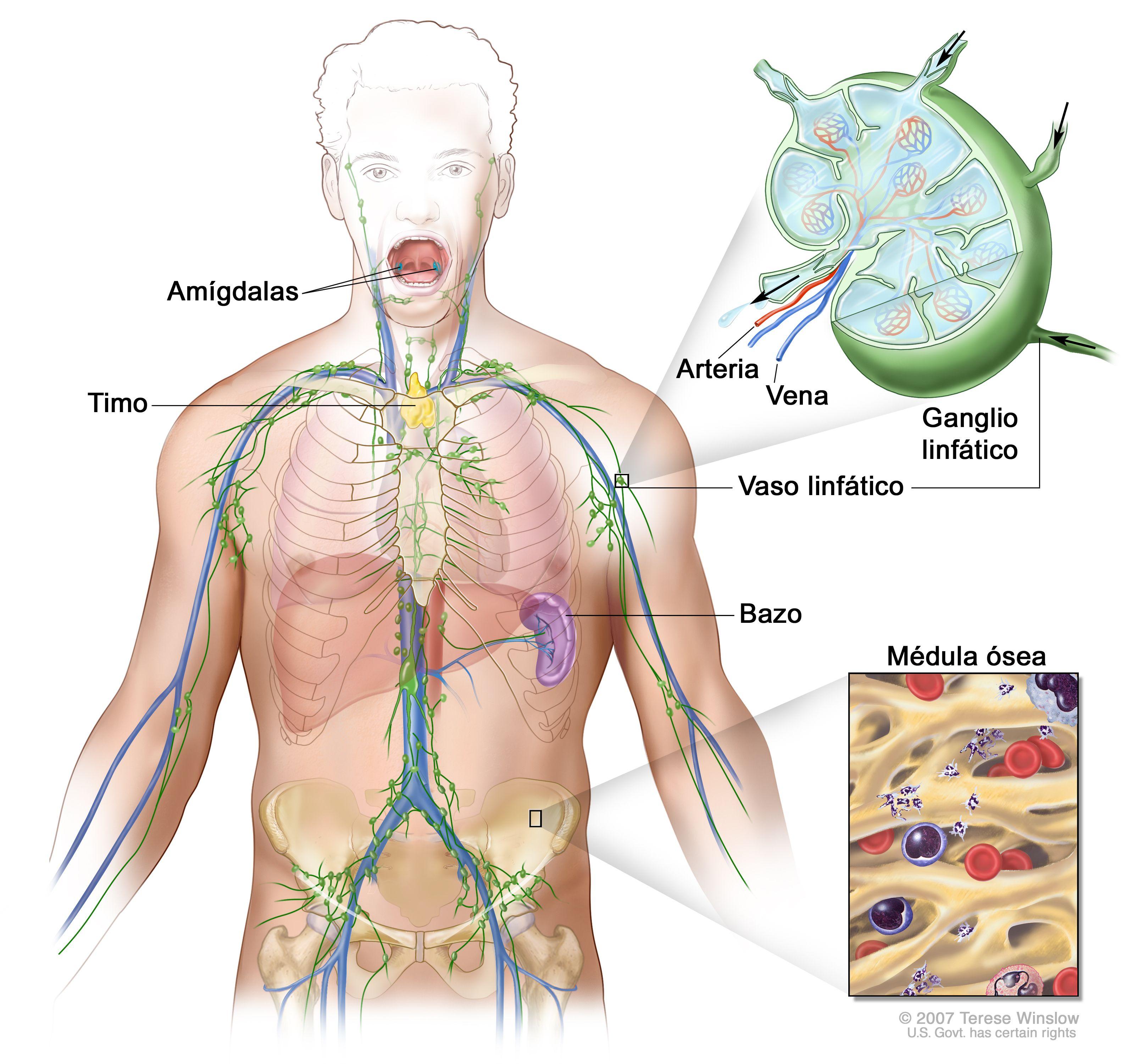 Que es cancer linfoma