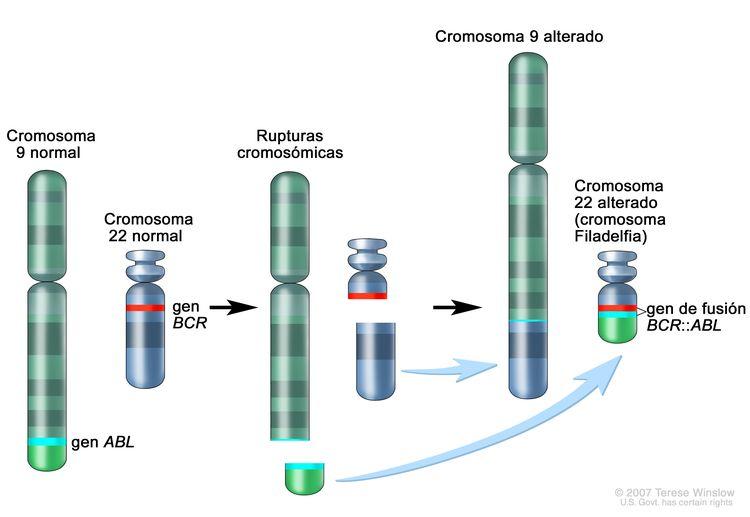 Cromosoma Filadelfia; en los tres paneles de la imagen se observa una sección del cromosoma 9 y una sección del cromosoma 22 que se rompen e intercambian lugares, creando un cromosoma 22 alterado llamado cromosoma Filadelfia. En el panel izquierdo, se muestra el cromosoma 9 normal con el gen ABL y el cromosoma 22 normal con el gen BCR. En el panel central, se muestra el cromosoma 9 que se separa a la altura del gen ABL y el cromosoma 22 que se separa por debajo del gen BCR. En el panel derecho, se muestra el cromosoma 9 unido a la sección del cromosoma 22 y el cromosoma 22 con la sección del cromosoma 9 que contiene parte del gen ABL unido. El cromosoma 22 alterado con el gen BCR-ABL se llama cromosoma Filadelfia.
