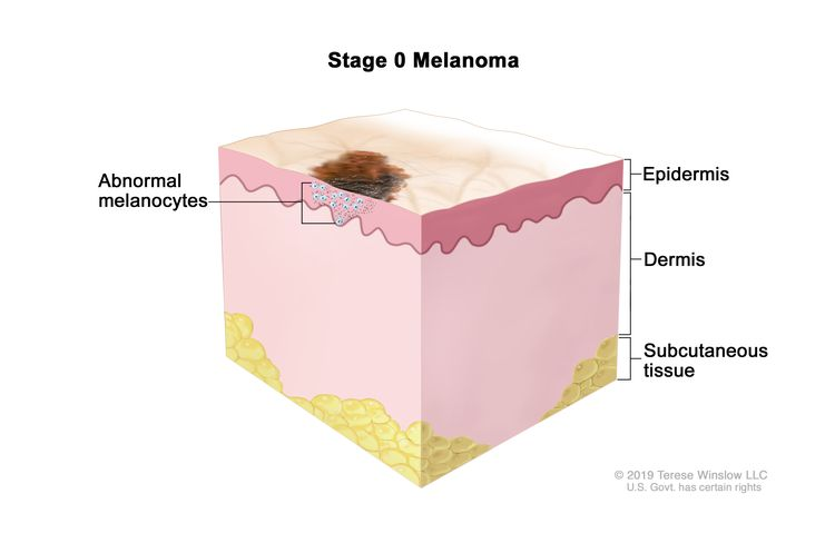 Stage 0 melanoma; drawing shows an abnormal area on the surface of the skin and abnormal melanocytes in the epidermis (outer layer of the skin). Also shown are the dermis (inner layer of the skin) and the subcutaneous tissue below the dermis.