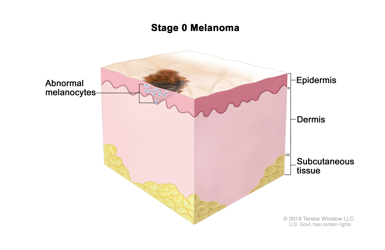 Melanoma Treatment Pdq Patient Version National Cancer Institute
