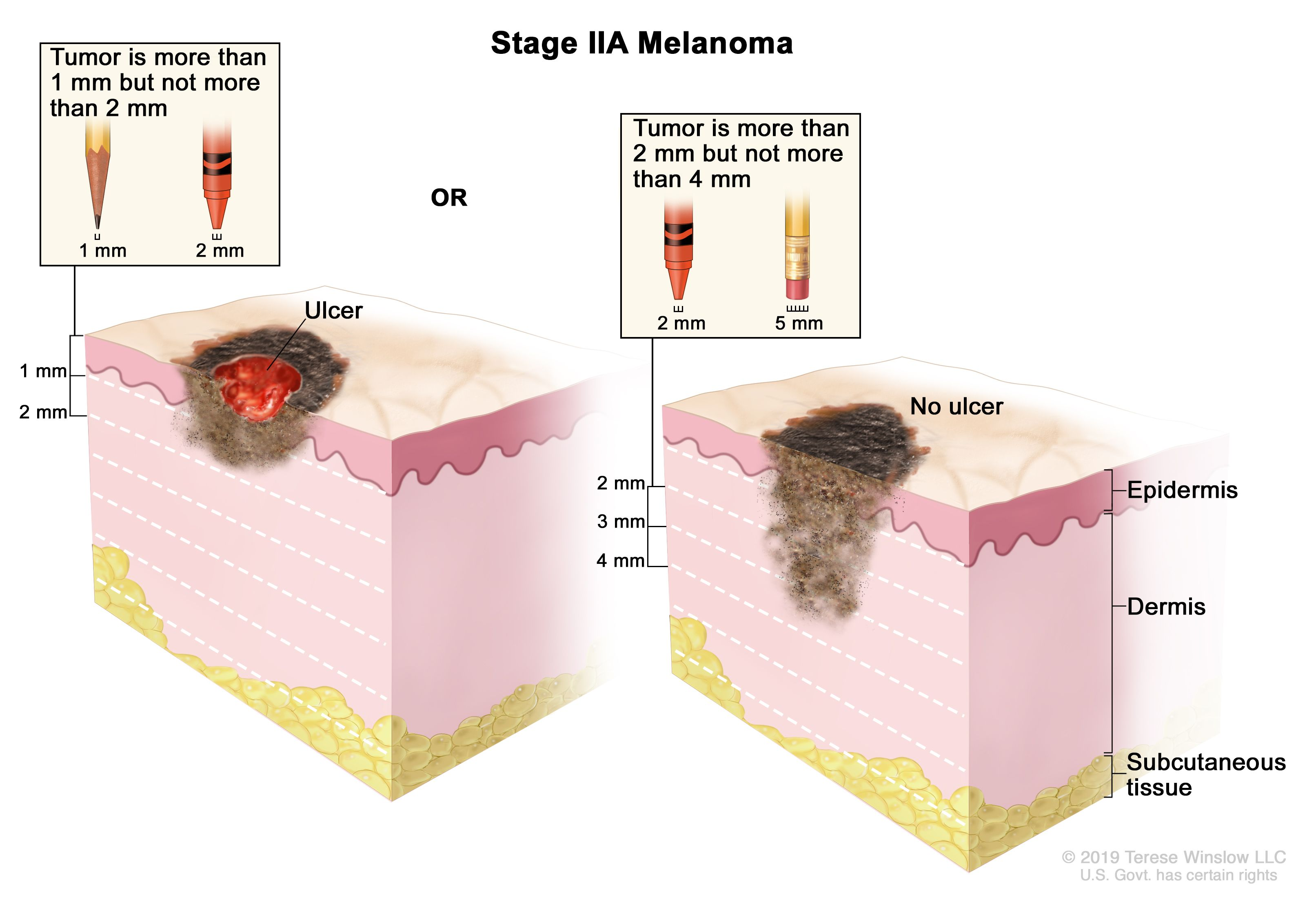 Definition Of Stage Ii Melanoma Nci Dictionary Of Cancer Terms National Cancer Institute