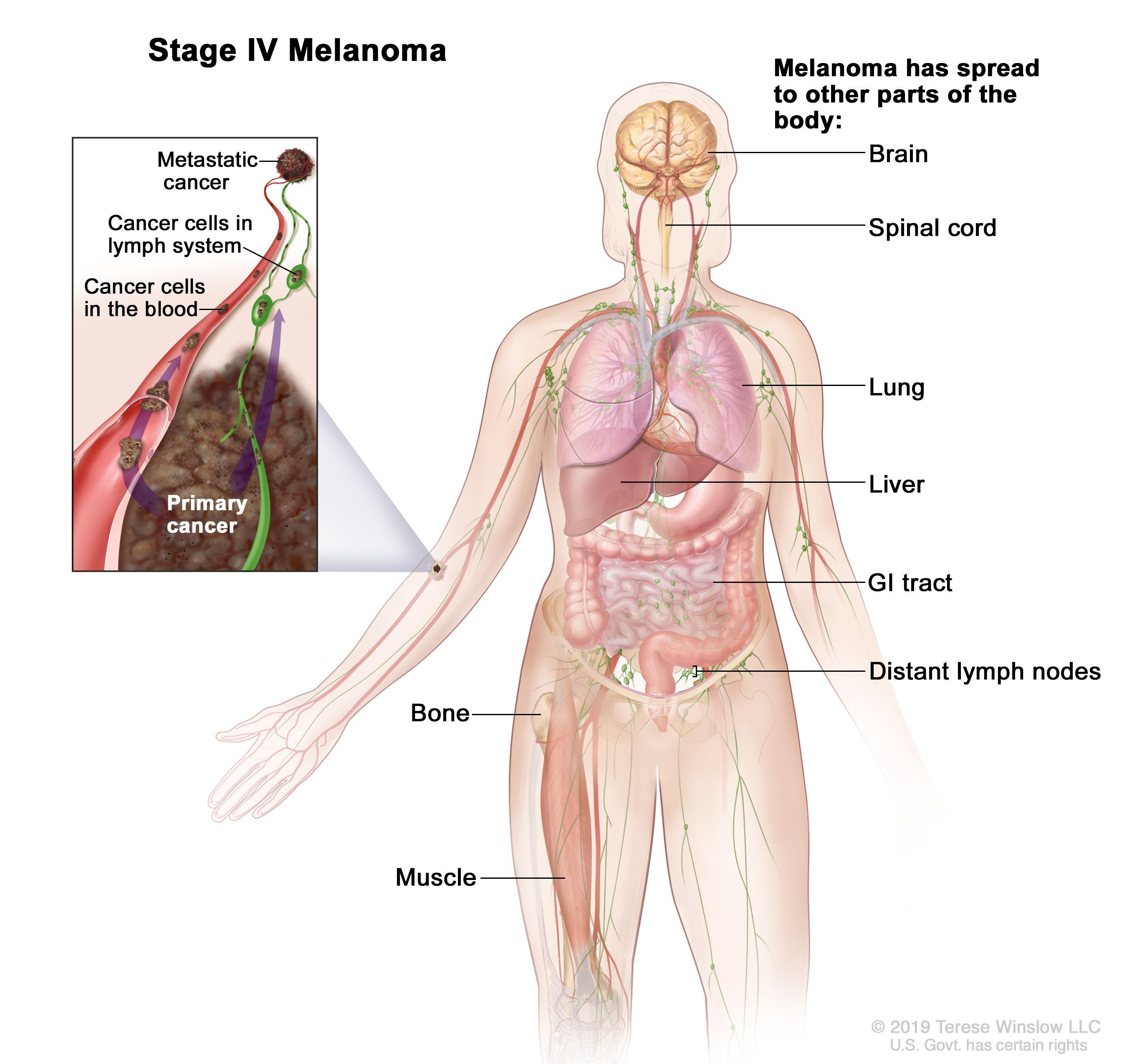 Hepatobiliary Pancreatic Surgery Melanoma