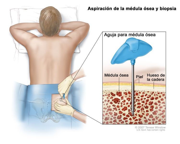 Aspiración de la médula ósea y biopsia; el dibujo muestra a un paciente acostado boca abajo en una camilla y una aguja para médula ósea que se inserta en el hueso de la cadera. El recuadro muestra la aguja para médula ósea que se inserta a través de la piel hasta la médula ósea del hueso de la cadera.