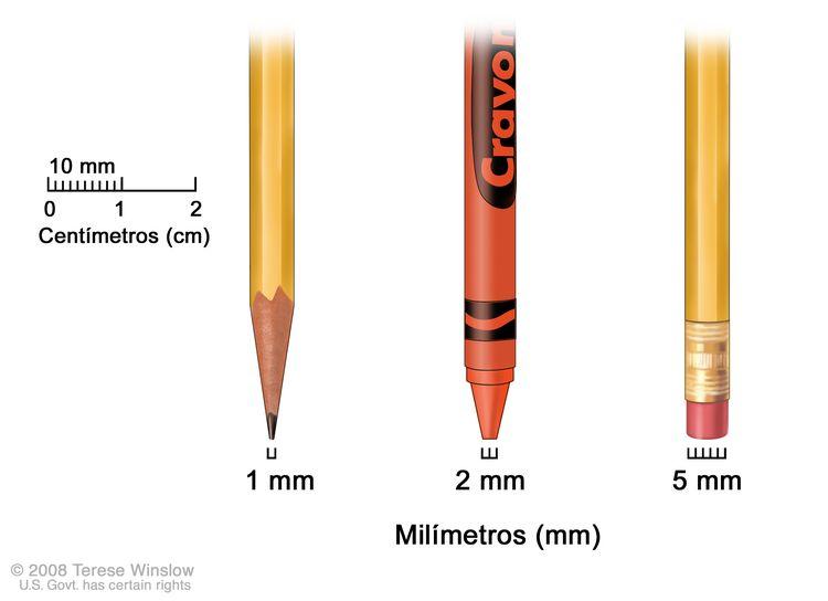 Milímetros; el dibujo muestra los milímetros (mm) usando objetos comunes. La punta de un lápiz afilado mide 1 mm, la punta de un lápiz de cera mide 2 mm y la goma de borrar nueva de un lápiz mide 5 mm.