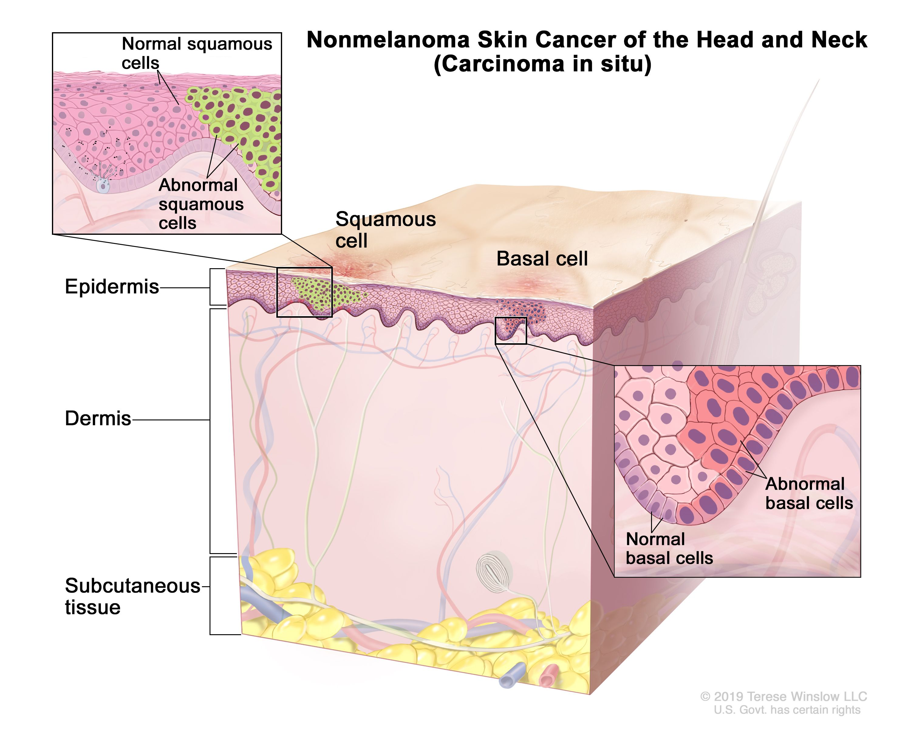 Skin Cancer Treatment Pdq Patient Version National Cancer Institute