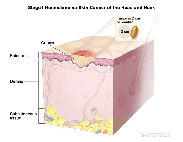 Stage I nonmelanoma skin cancer of the head and neck; drawing shows cancer in the epidermis. An inset shows that the tumor is 2 centimeters or smaller and that 2 centimeters is about the size of a peanut. Also shown are the dermis and the subcutaneous tissue below the dermis.
