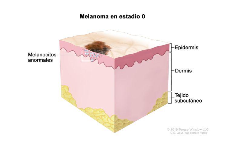 Melanoma en estadio 0. En la imagen se observa un área anormal en la superficie de la piel y melanocitos anormales en la epidermis (capa superficial o externa de la piel). También se muestra la dermis (capa profunda o interna de la piel) y el tejido subcutáneo debajo de la dermis.