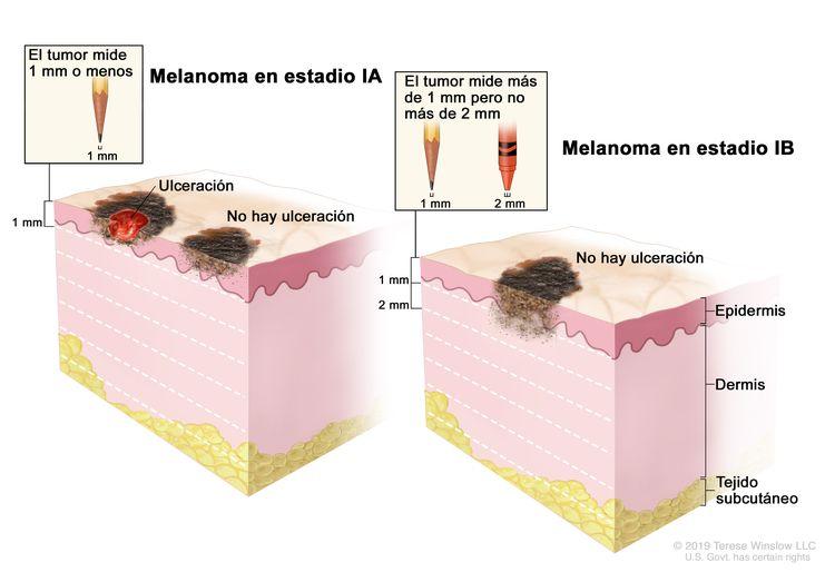 Dibujo de dos paneles del melanoma en estadio I. En el panel de la izquierda se observa un tumor en estadio IA que no mide más de 1 mm de grosor, y hay ulceración (rotura de la piel) o no hay ulceración. En el panel de la derecha se observa un tumor en estadio IB que mide más de 1 mm pero no más de 2 mm y no hay ulceración. También se muestran la epidermis (capa superficial o externa de la piel), la dermis (capa profunda o interna de la piel) y el tejido subcutáneo debajo de la dermis.