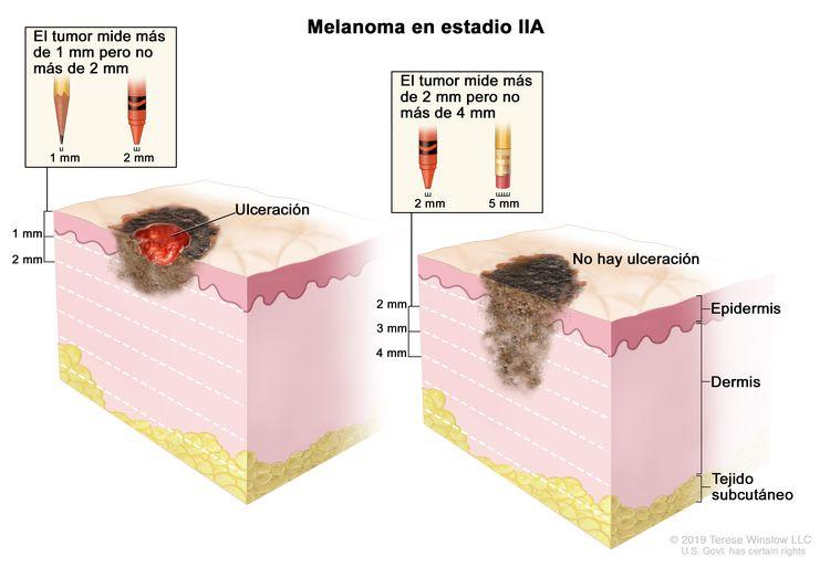 Dibujo de dos paneles del melanoma en estadio IIA. En el panel de la izquierda se observa un tumor que mide más de 1 mm pero no más de 2 mm de grosor y hay ulceración (rotura de la piel). En el panel de la derecha se observa un tumor que mide más de 2 mm pero no más de 4 mm de grosor y no hay ulceración. También se muestran la epidermis (capa superficial o externa de la piel), la dermis (capa profunda o interna de la piel) y el tejido subcutáneo debajo de la dermis.