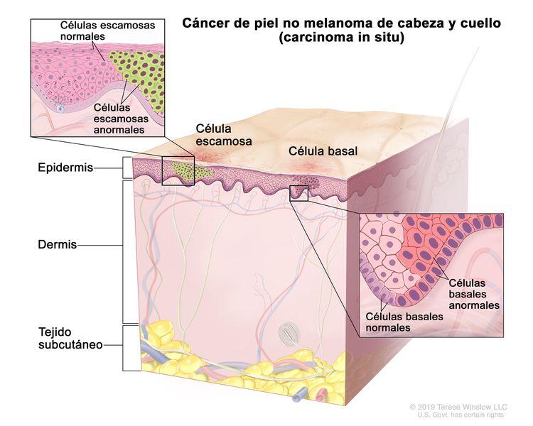 Cáncer de piel no melnoma de cabeza y cuello (carcinoma in situ). En la imagen se observan células escamosas y células basales normales y anormales en la epidermis. También se muestran la dermis y el tejido subcutáneo debajo de la dermis. Hay dos recuadros: en el recuadro de la izquierda se muestra una ampliación de las células escamosas normales y anormales; en el recuadro de la derecha se muestra una ampliación de las células basales normales y anormales.