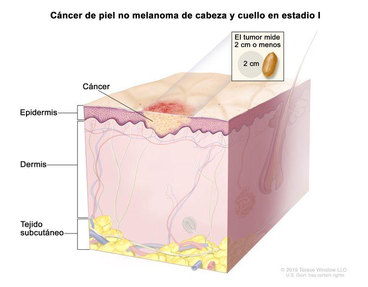 Cáncer de piel no melanoma de cabeza y cuello en estadio I. En la imagen se observa cáncer en la epidermis. En un recuadro se muestra que el tumor mide 2 cm o menos y que 2 cm es casi el tamaño de un maní. También se muestran la dermis y el tejido subcutáneo debajo de la dermis.