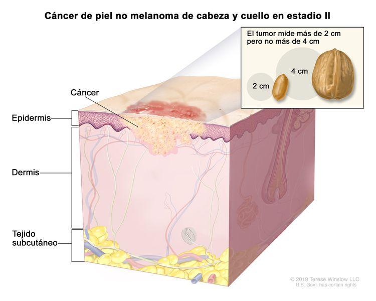 Cáncer de piel no melanoma de cabeza y cuello en estadio II. En la imagen se observa cáncer en la epidermis y la dermis. En un recuadro se muestra que el tumor mide más de 2 cm pero no más de 4 cm, que 2 cm es casi el tamaño de un maní y 4 cm es casi el tamaño de una nuez. También se muestra el tejido subcutáneo debajo de la dermis.