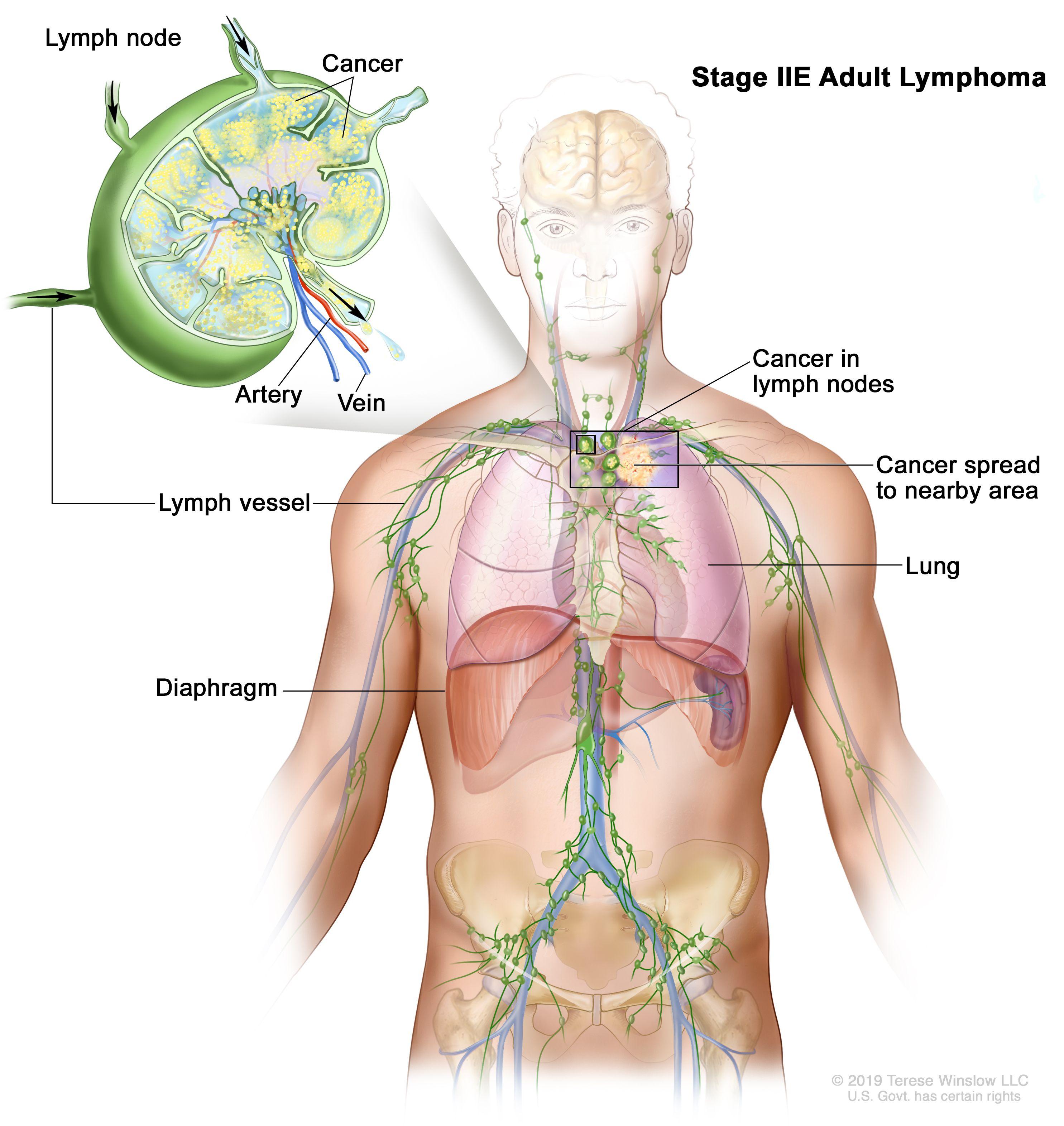 cancer after hodgkin s disease)