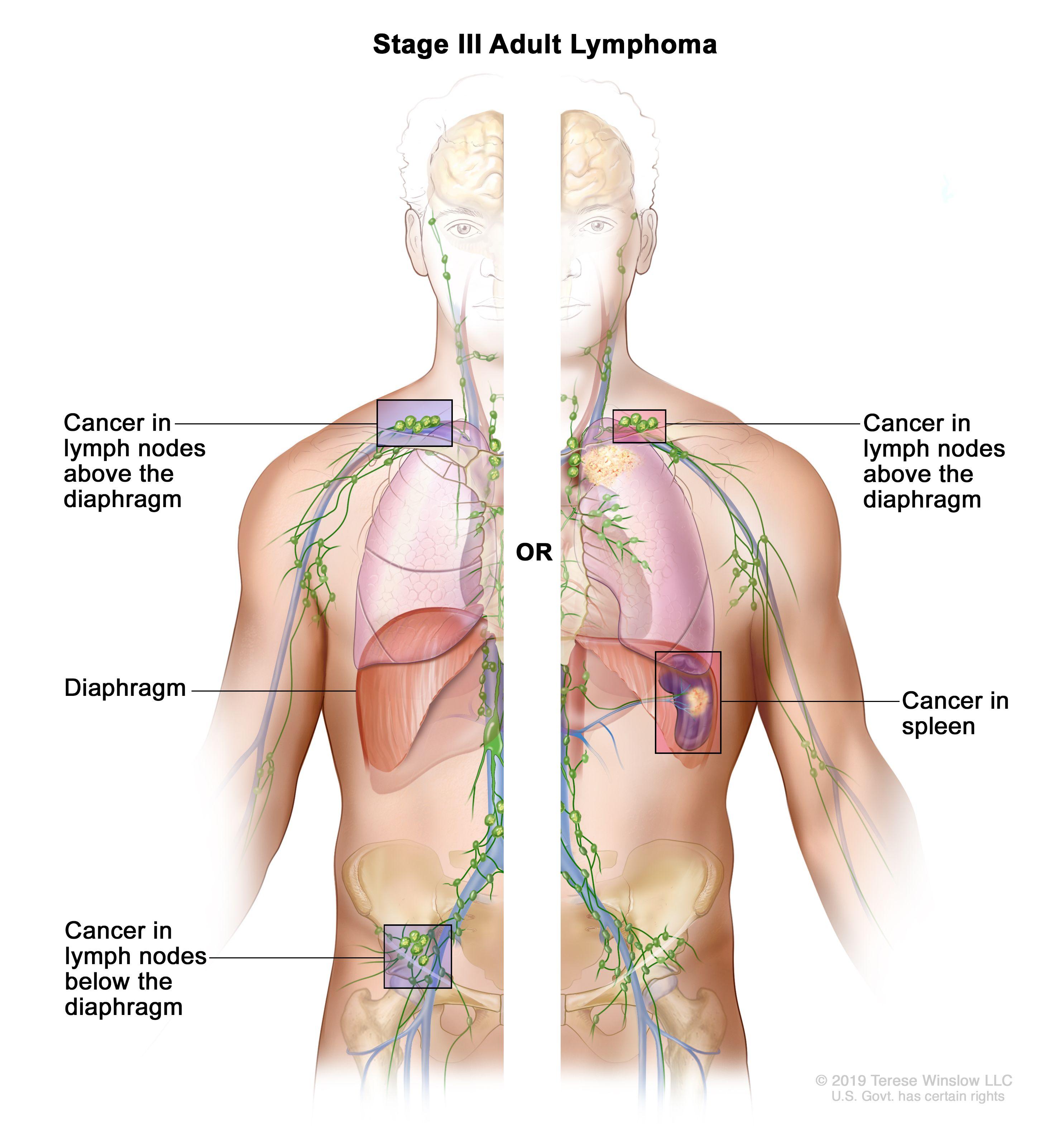 metastatic cancer non hodgkin s lymphoma)