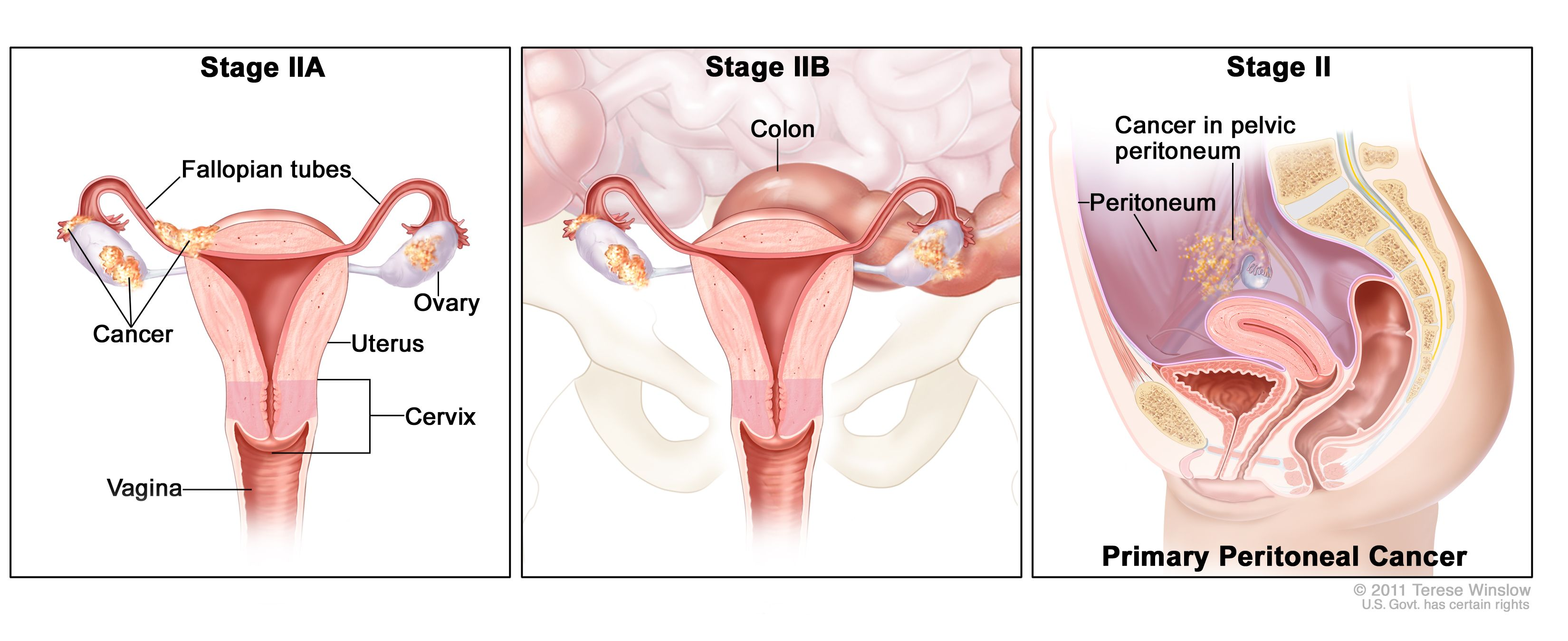 Ovarian Epithelial Fallopian Tube And Primary Peritoneal Cancer Treatment Pdq Health Professional Version National Cancer Institute