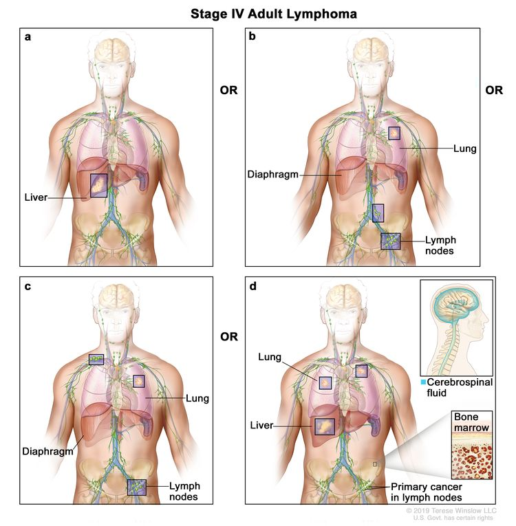 Stage IV adult lymphoma; drawing shows four panels: (a) the top left panel shows cancer in the liver; (b) the top right panel shows cancer in the left lung and in two groups of lymph nodes below the diaphragm; (c) the bottom left panel shows cancer in the left lung and in a group of lymph nodes above the diaphragm and below the diaphragm; and (d) the bottom right panel shows cancer in both lungs, the liver, and the bone marrow (pullout). Also shown is primary cancer in the lymph nodes and a pullout of the brain with cerebrospinal fluid (in blue).