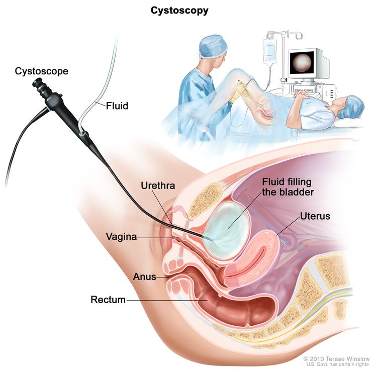 Cystoscopy; drawing shows a side view of the lower pelvis containing the bladder, uterus, and rectum. Also shown are the vagina and anus. The flexible tube of a cystoscope (a thin, tube-like instrument with a light and a lens for viewing) is shown passing through the urethra and into the bladder. Fluid is used to fill the bladder. An inset shows a woman lying on an examination table with her knees bent and legs apart. She is covered by a drape. The doctor looks at an image of the inner wall of the bladder on a computer monitor.